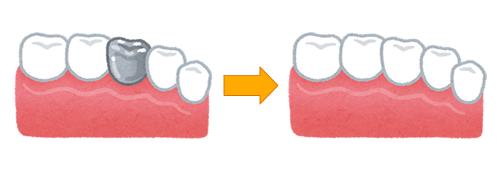 銀歯を白くする